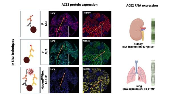 Shows the specific localization of ACE 2 with NaveniFlex